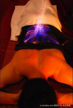 terapia del fuoco in Cina