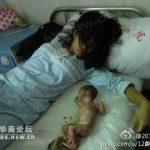 L'immagine scioccante di un aborto forzato in Cina (immagine cruenta)